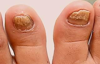 Atopic miliarny dermatite di una fotografia