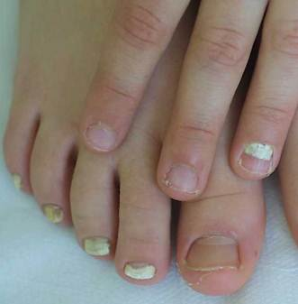 Descrizione di dermatite di atopic di pelle