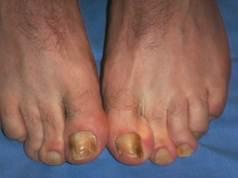 Unguento di eczema di propolis