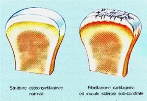 La medicina più efficace a osteochondrosis di reparto cervicale