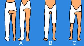 Tipi di gesso ortopedico